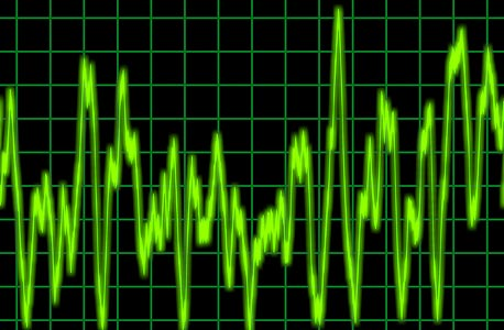 """אודיו. מחפשים קפיצות ואי־רציפות בהקלטה; בודקים את רעשי הרקע לאיתור הגברות או החלשות """"לבנות"""" -מקומות שבהם רעש הרקע שונה במכוון"""