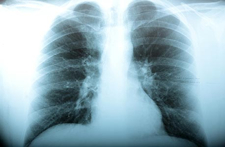 Chest X-Ray. Photo: Shuttestock
