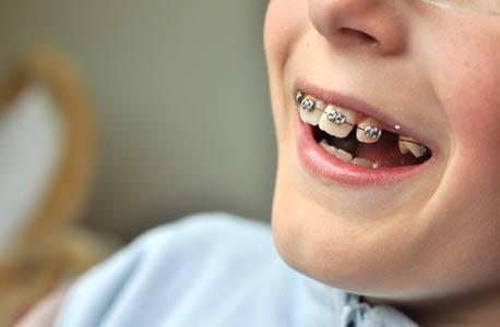 300 ילדי קצינים מיישרים שיניים על חשבונכם כל שנה