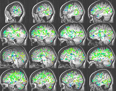 הדמיית המוח של סקאל בעת הניסוי. עוד ועוד חלקים במוח מצטרפים, וברגע האורגזמה (צד שמאל למטה) נרשמה פעילות ביותר מ-30 אזורים