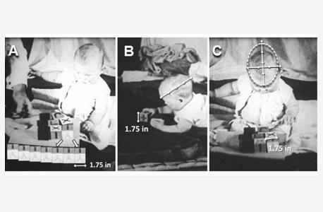 מתוך המחקר של פרופ' בק: מדידות ראשו של התינוק אלברט, לפי תמונות מהסרט. בק סבור שאמו הסכימה לניסויים כדי שבית החולים יטפל בו