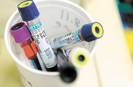 עתיד. מבחנות עם הדם שלי. בדרך לפענוח גנטי. הכל כתוב, הפתגם אומר. אבל מי חשב שיום אחד נוכל לקרוא, צילום: עמית שעל