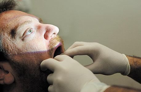 הרופא מאתר פיברומה חשודה על הלשון. אם כבר להסיר, אני מעדיף מהרגל, אפילו מהפרוסטטה