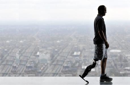 """זאק ואוטר, אחרי שטיפס עם רגלו הביונית במעלה וויליס טאוור בשיקגו. ד""""ר אנני סימון: """"הוא רצה לעשות את זה בשעה, וזה לקח לו 50 דקות. זו היתה הצלחה גדולה לו ולנו"""""""