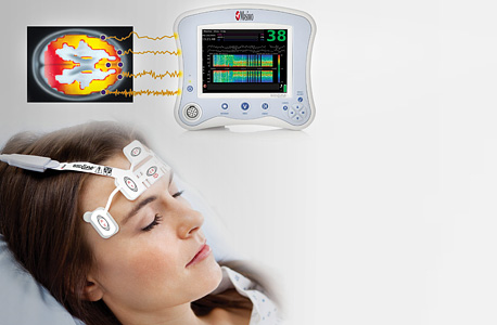 Electrodes monitoring a patient's brainwaves. Photo: IPA
