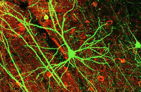 תאי עצב, צילום: ויקיפדיה