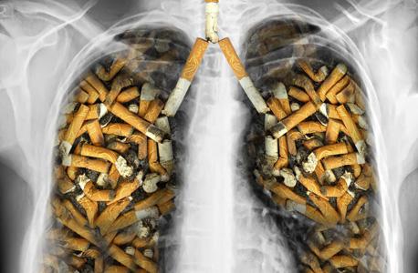 סרטן ריאות. אילוסטרציה