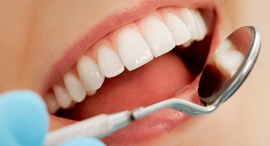 Whitened teeth (illustration). Photo: Shutterstock