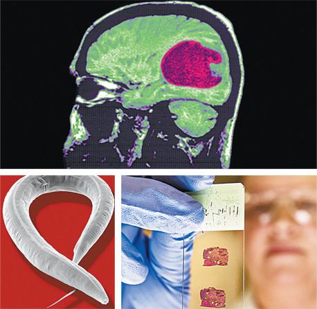 סרטן מוח מסוג GBM (למעלה ומימין למטה), ותולעת נמטודה. מה שהחל במחקר של תולעת פשוטה הוביל לבשורה לחולים באחד מסוגי הסרטן האלימים ביותר