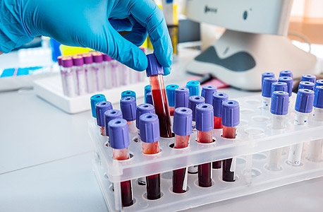 Blood test (illustration). Photo: Shutterstock