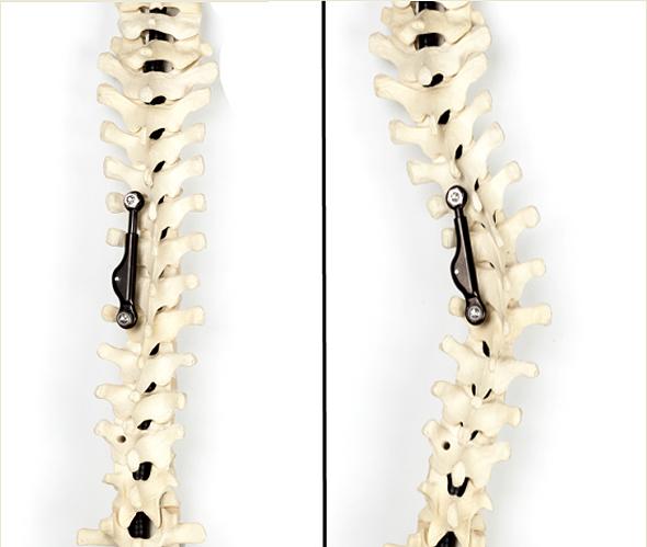 Idiopathic scoliosis. Photo: ApiFix