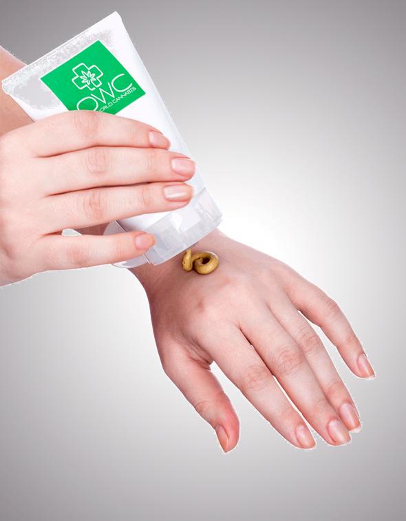 משחה מבוססת קנאביס לטיפול בפסוריאזיס, שפיתחה OWC