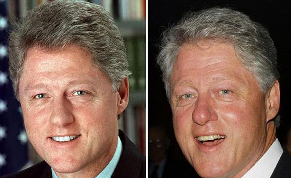 ביל קלינטון. לפני ואחרי, צילום: גטי אימג