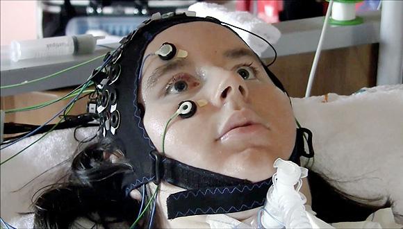 קתרין חולה ב ALS, צילום: Wyss Center