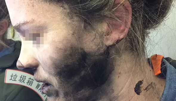 אוזניות אפל כוויה תאונה פציעה