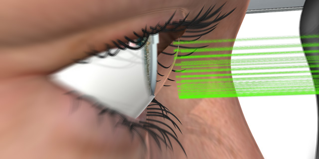 LAser eye surgery. Photo: Nitzan Sadan