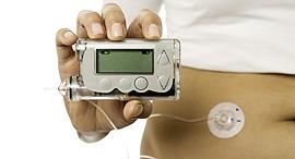 סוכרת משאבת אינסולין, צילום: שאטרסטוק