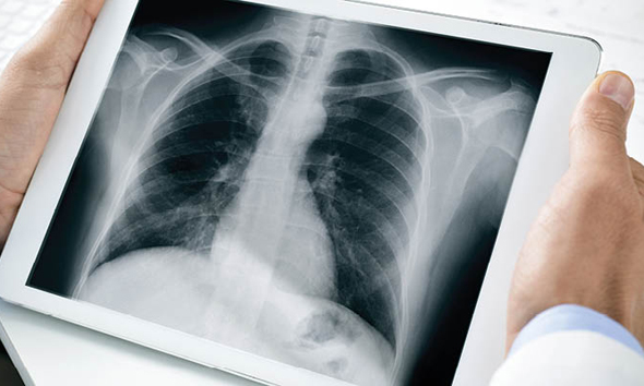 Lung CT (illustration). Photo: Shutterstock