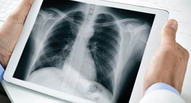 A doctor examining a chest x-ray. Photo: Shutterstock
