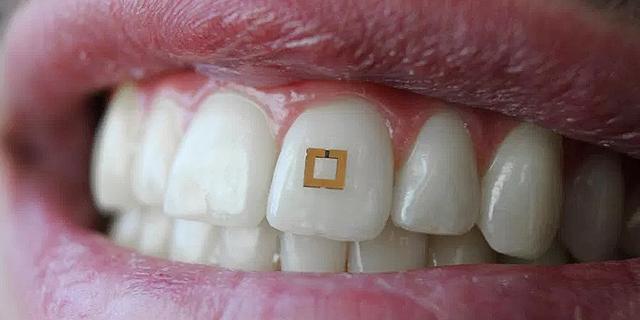 חיישן על שן: צ'יפ קטן יספר לרופא מה אכלתם ומתי