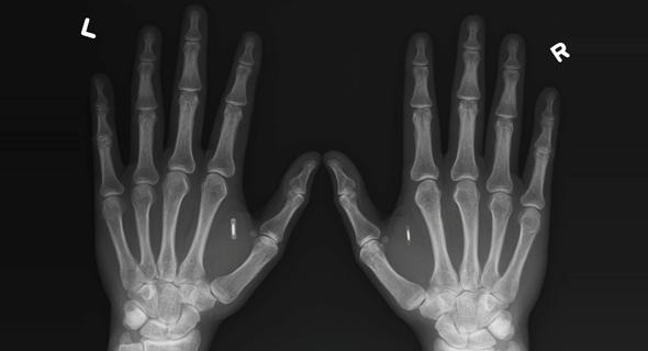 צ'יפים בכף היד צילום רנטגן