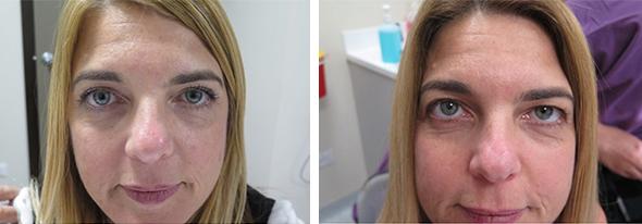 דינה אבוזגלו לפני הניתוח (מימין) ואחריו (משמאל), צילום: המרכז הרפואי עין טל
