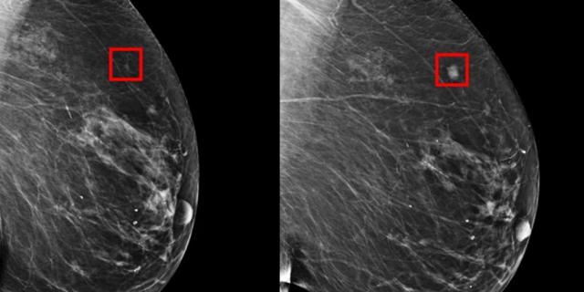 פותח כלי AI שמסוגל לזהות סרטן שד חמש שנים לפני התפרצותו