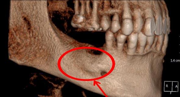 עצם לסת של בונוס ביגרופ