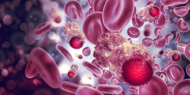 הסטארט-אפ הישראלי שמחסל תאים סרטניים