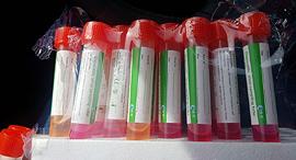 מטושים עם חומר מחליף צבעים תקולים בדיקות נגיף קורורנה הקורונה