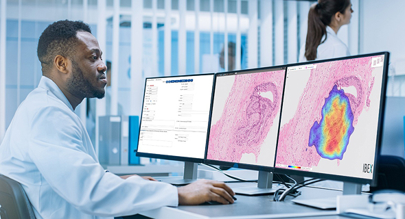 Medical imaging in operation. Photo Ibex Medical Analytics
