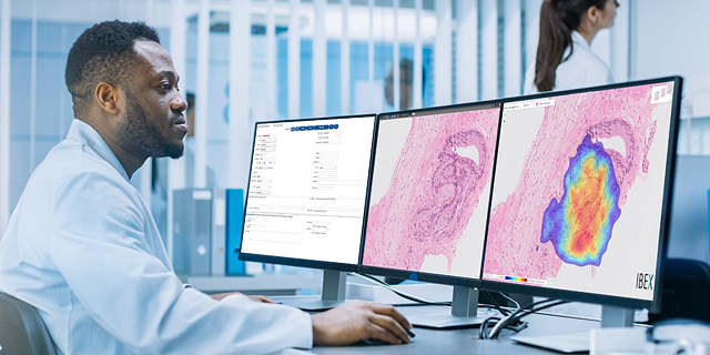 Ibex Medical Analytics partners with French laboratory network Medipath