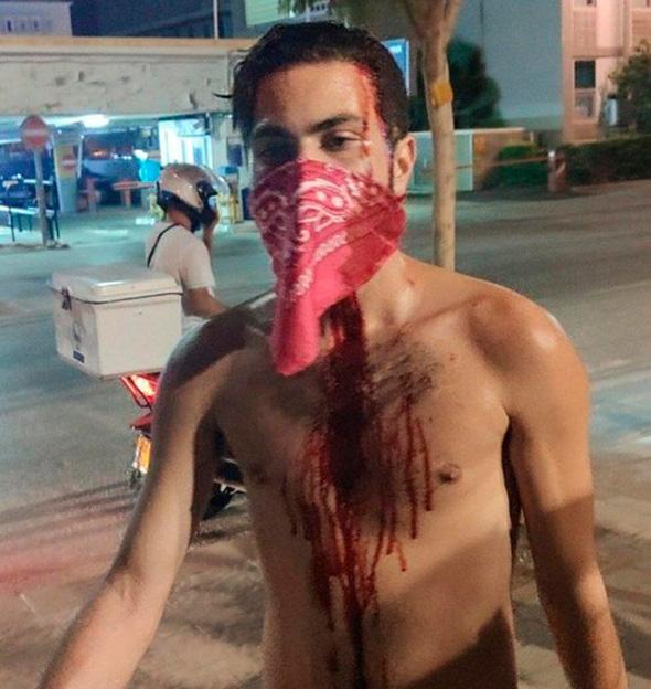 """מפגין שנפצע בתל אביב , צילום: בן נצר גלי צה""""ל"""