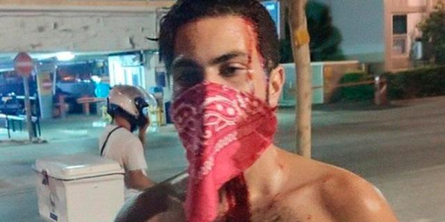 אלימות פוליטית בישראל: מדוע אין שום סימטריה בין ימין לשמאל