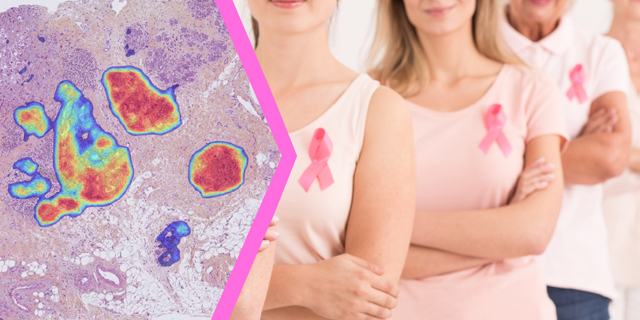 Ibex obtains CE Mark for AI-powered breast cancer detection