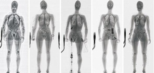 מערכת סריקה מתקדמת מציגה ממש כל דבר שנושא הנוסע, אפילו בתוך גופו, צילום:  adanisystems
